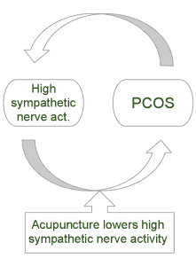 Acupuncture PCOS